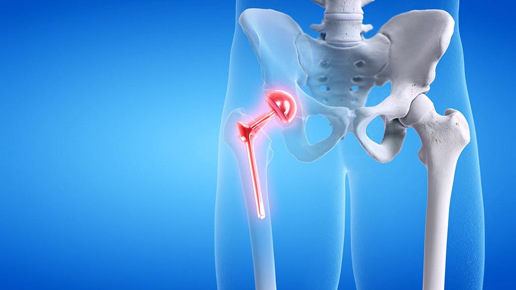 Hip Replacement Lawyers