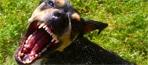 dog-bite-1