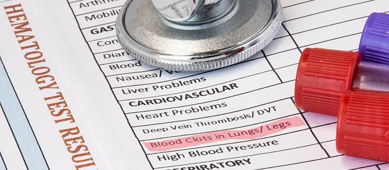 Medical test results showing blood clot