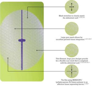 Ethicon Physiomesh diagram