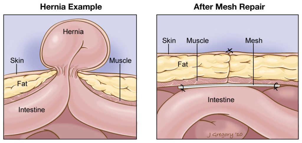 Hernia Mesh Surgery Illustration